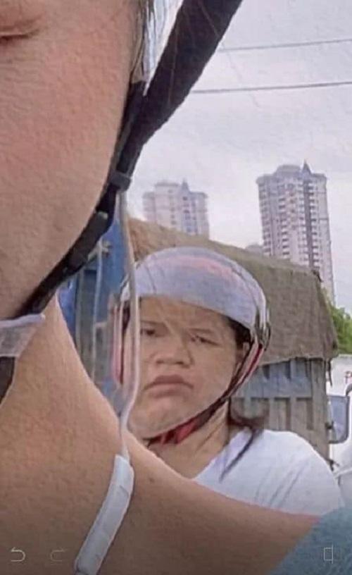 Cô gái bị bóc mẽ khi khoe ảnh chụp mặt V-line - 4