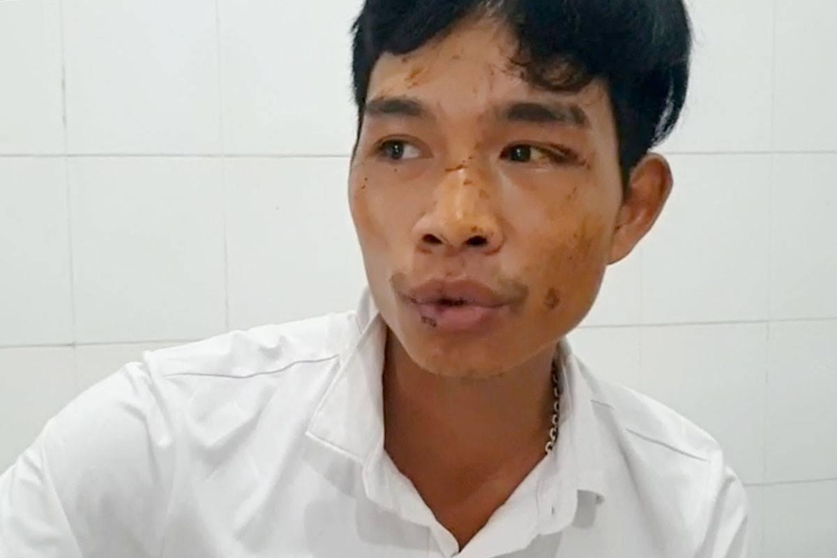 Công nhân Hồ Văn Thoàng đang điều trị ở Bệnh viện Đa khoa Bình Điền. Ảnh: Đông Long.