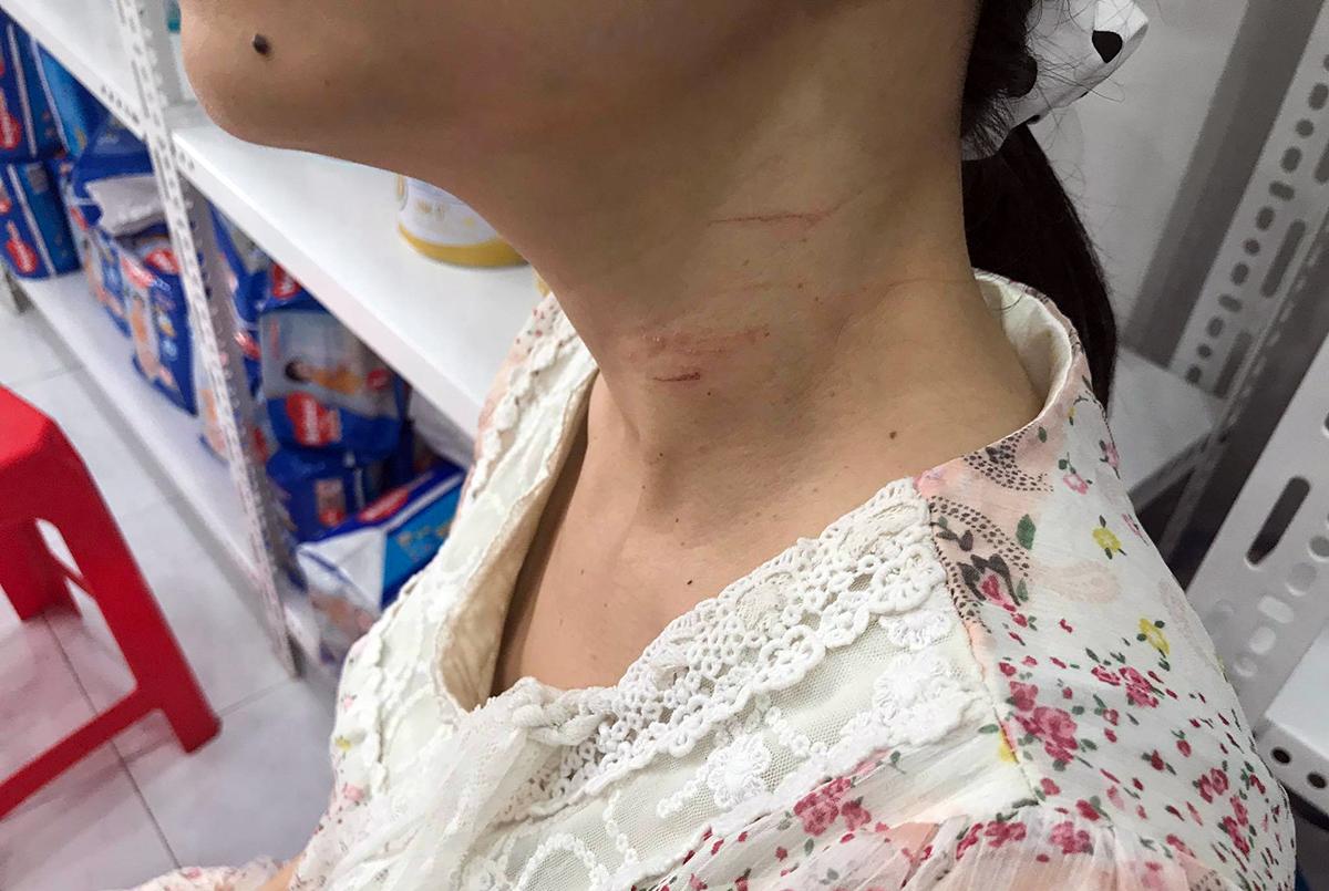 Vết hằn trên cổ chị Thùy do bị khống chế bằng dao. Ảnh: Đình Văn.