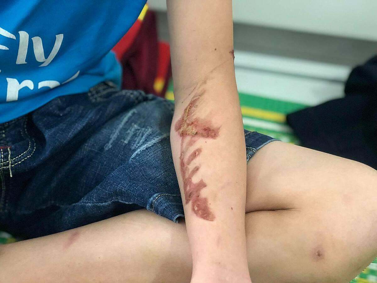 Vết thương ở tay của Duy do bị chủ quán đánh. Ảnh: Phạm Dự.