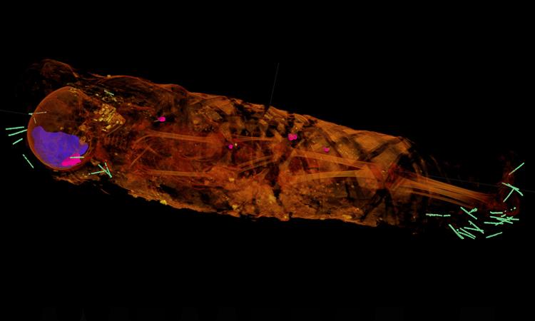 Ảnh chụp hé lộ cấu trúc bên trong xác ướp 2.000 năm tuổi Ảnh: Stuart Stock.