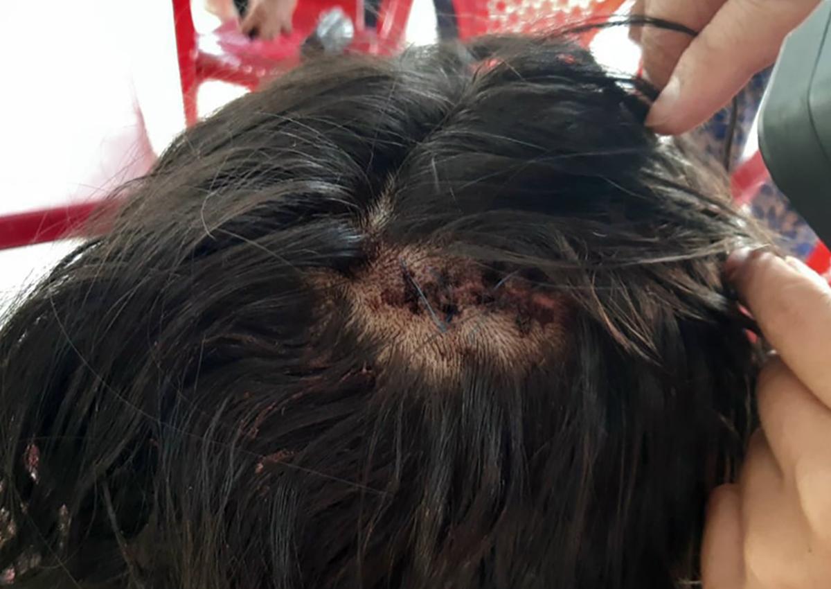 Nữ sinh bị đánh vào đầu, may 10 mũi. Ảnh: Yên Khanh