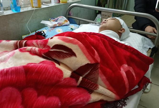 Nạn nhân đang hôn mê, điều trị tại Bệnh viện Đa khoa tỉnh Thanh Hoá. Ảnh: Lam Sơn.