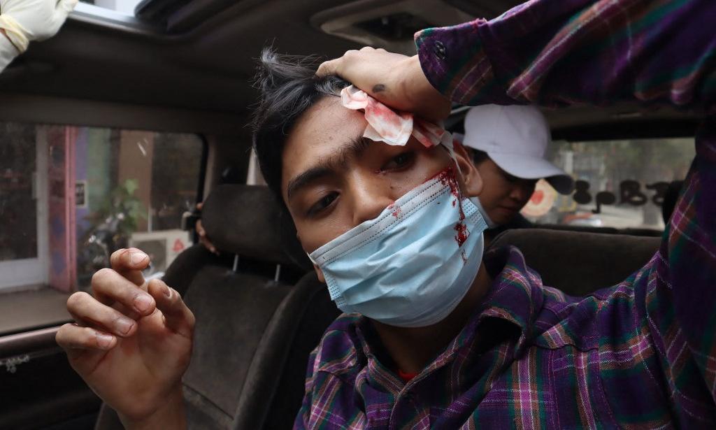 Một người biểu tình trúng đạn trong vụ đụng độ ở Mandalay hôm 20/2. Ảnh: AFP.