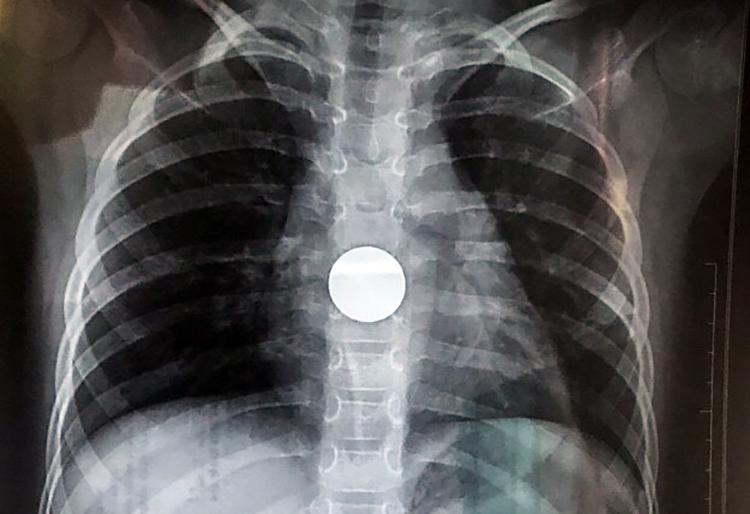 Hình ảnh X-Quang xác định đồng xu gần dạ dày bé gái. Ảnh: Bệnh viện cung cấp