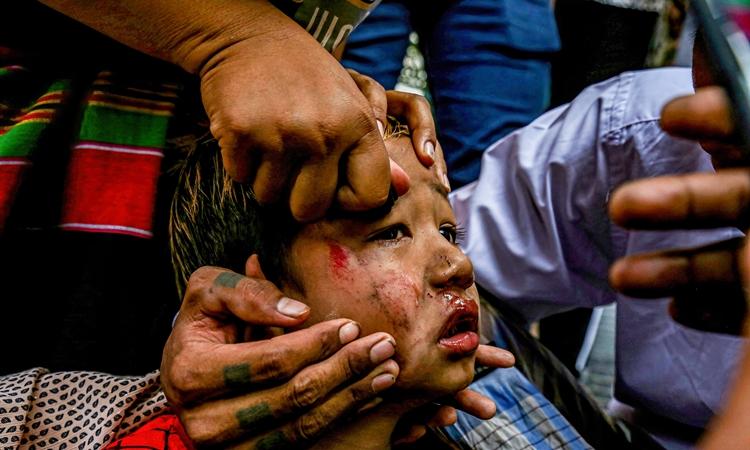 Một em nhỏ bị thương trong cuộc biểu tình ở Mandalay, Myanmar, hôm 26/2. Ảnh: Reuters.