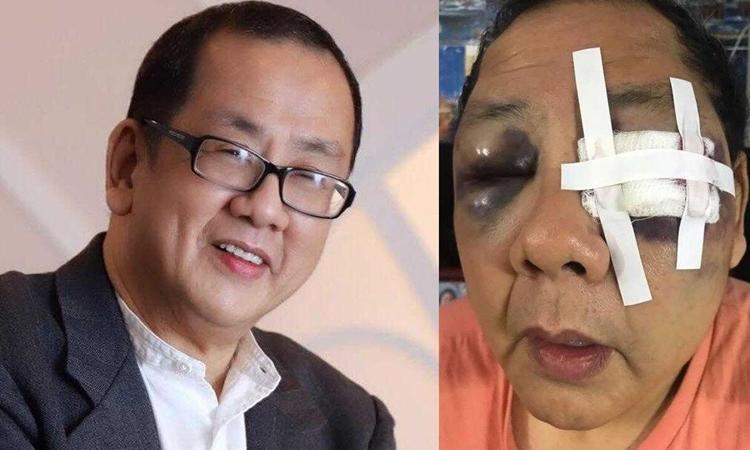 Danilo Yu Chang trước và sau khi bị tấn công vô cớ ở San Francisco. Ảnh: ABC News.