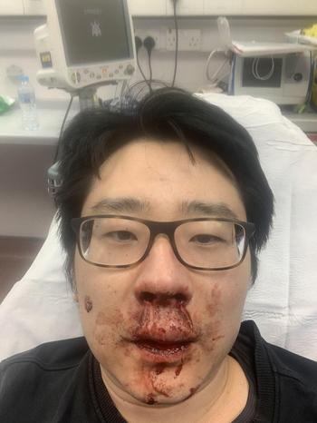 Giảng viên Peng Wang bị chảy máu mũi sau vụ hành hung ở Southampton, Anh hôm 23/2. Ảnh:SCMP.