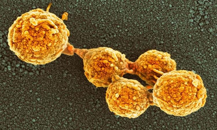Một số vi khuẩn Mycoplasma tổng hợp do nhóm nghiên cứu tạo ra. Ảnh: Science Photo Library.