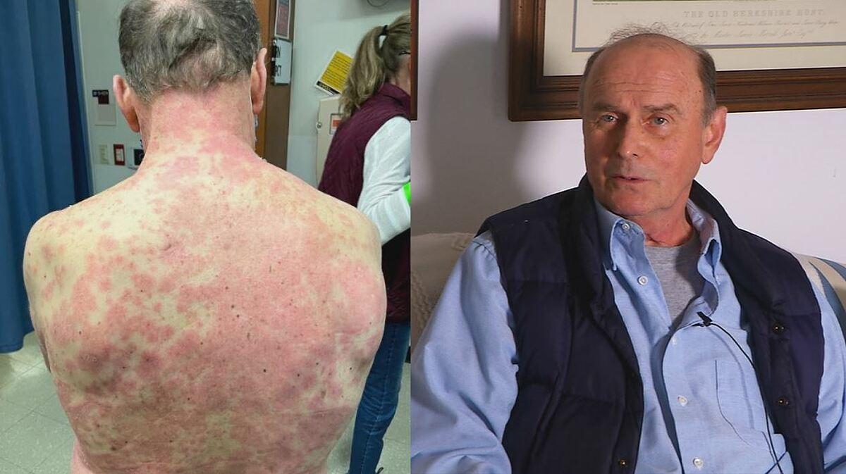 Ông Richard Terrell bị phát ban toàn thân sau khi tiêm vaccine Covid-19 của Johnson & Johnson. Ảnh: Richmond News.