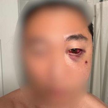 Vết thương trên mặt người đàn ông gốc Á bị tấn công ở New York, Mỹ hôm 27/3. Ảnh: ABC.