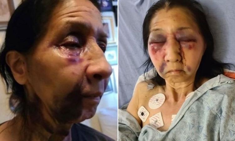 Cụ bà Becky, 70 tuổi, nhập viện sau khi bị tấn công trên chuyến xe buýt ở Los Angeles hôm 14/4. Ảnh: Instagram/the_asian_dawn.