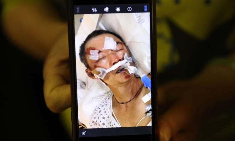 Người đàn ông gốc Hoa Yao Pan Ma nhập viện trong tình trạng khẩn cấp sau vụ tấn công tối 24/4. Ảnh: NY Post.