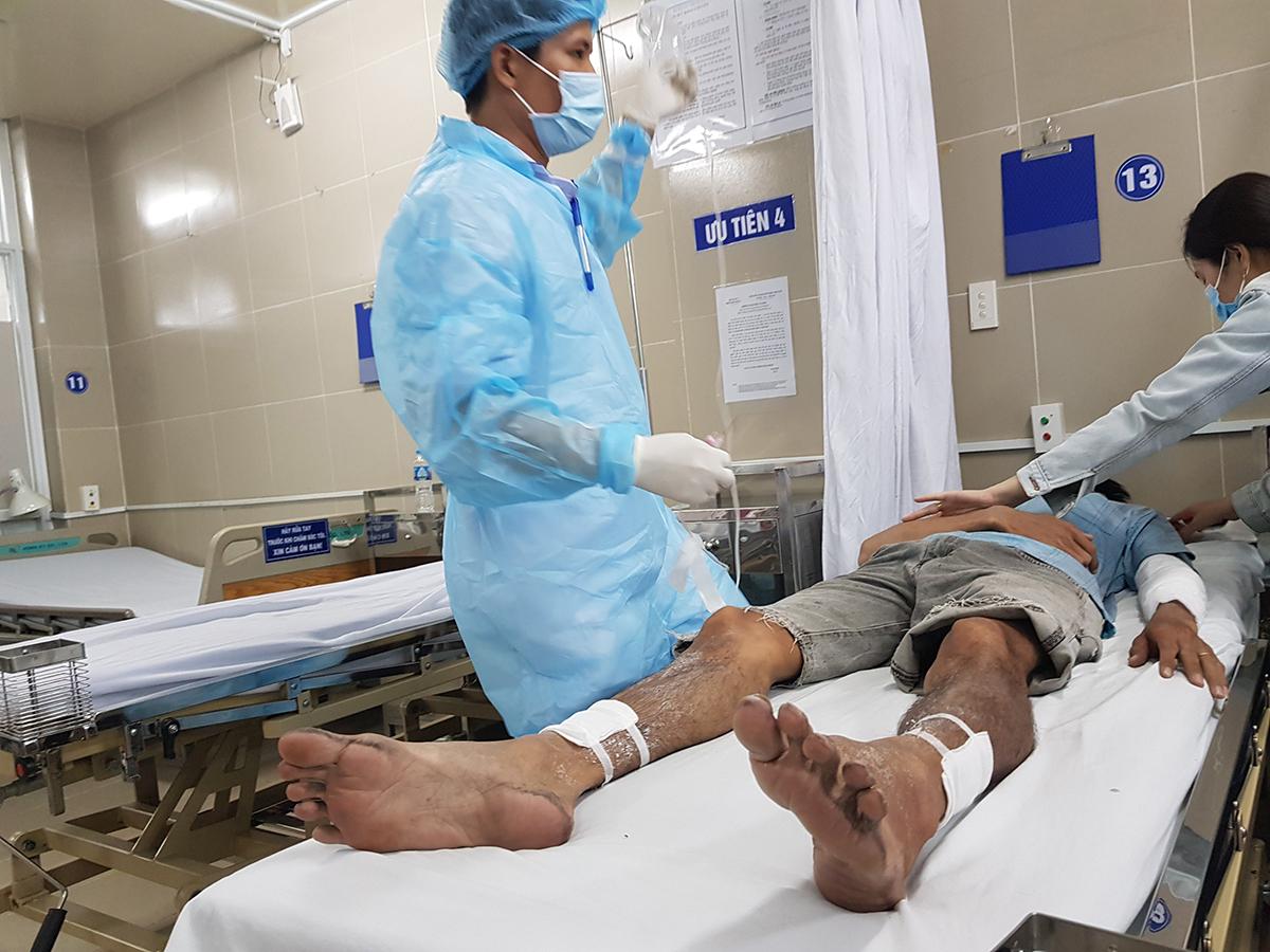 Anh Tựu bị bỏng độ 2 đang điều trị ở bệnh viện quận 11. Ảnh: Đình Văn.
