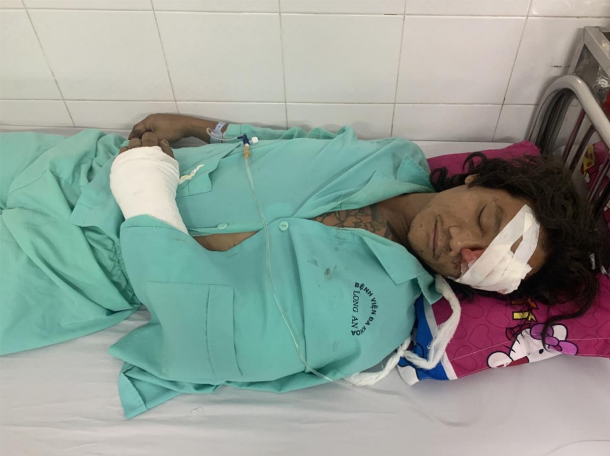 Anh Nguyễn Thanh Hải đang được điều trị tại Bệnh viện đa khoa Long An. Ảnh: Hoàng Nam
