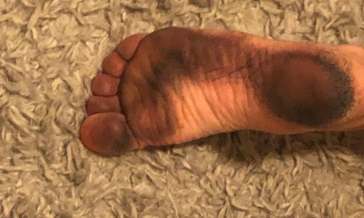 Vết bẩn bám vào bàn chân người đi biển. Ảnh: Boston.