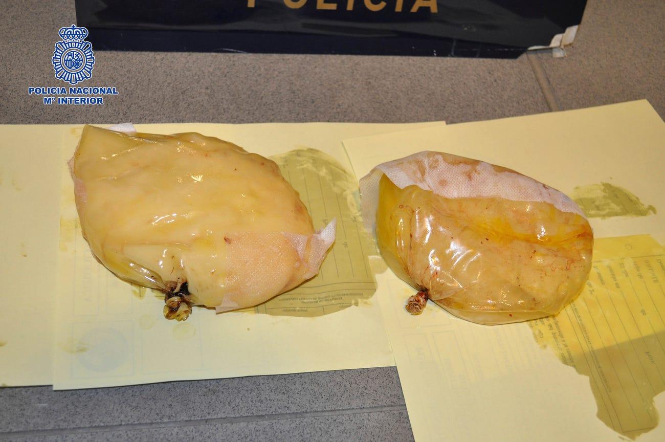 Hai túi ngực giả bên trong giấu 1,4 kg ma tuý của cô gái Panamá bị bắt cuối năm 2012. Ảnh: Bussines Insider