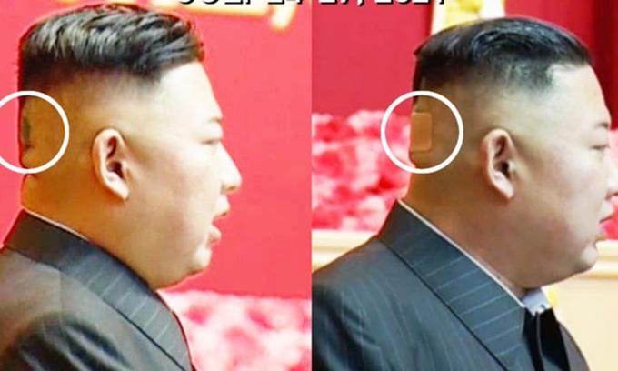 Miếng băng y tế trên đầu lãnh đạo Triều Tiên Kim Jong-un cuối tháng trước. Ảnh: KCTV.