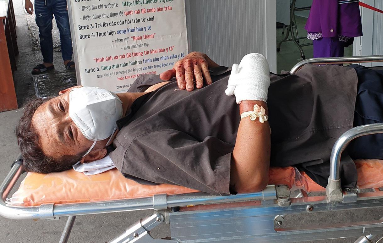 Ông Khiêm được người dân đưa đi cấp cứu sau khi bị chém đứt tay. Ảnh: Yên Khánh