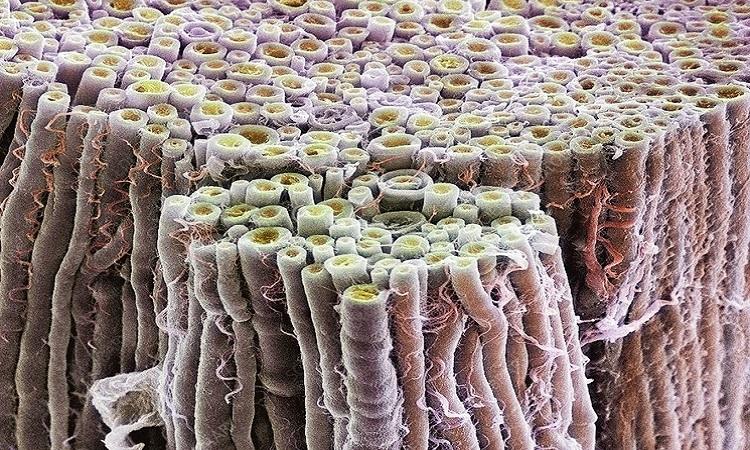 Mặt cắt bó sợi thần kinh nhìn dưới kính hiển vi điện tử quét. Ảnh: Science Photo Library