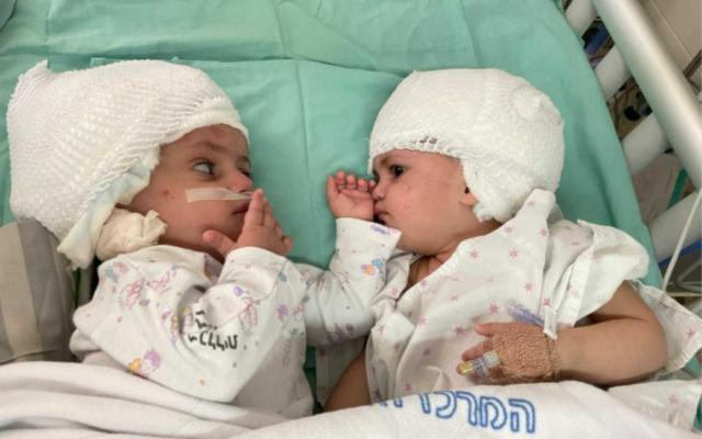 Cặp song sinh dính liền đầu sau khi được phẫu thuật tách rời tại Trung tâm Y tế Đại học Soroka ở Beersheba, Israel, hôm 5/9. Ảnh: Trung tâm Y tế Đại học Soroka.