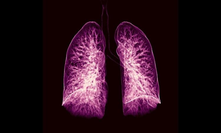 Ảnh chụp cắt lớp lá phổi. Ảnh: iStock