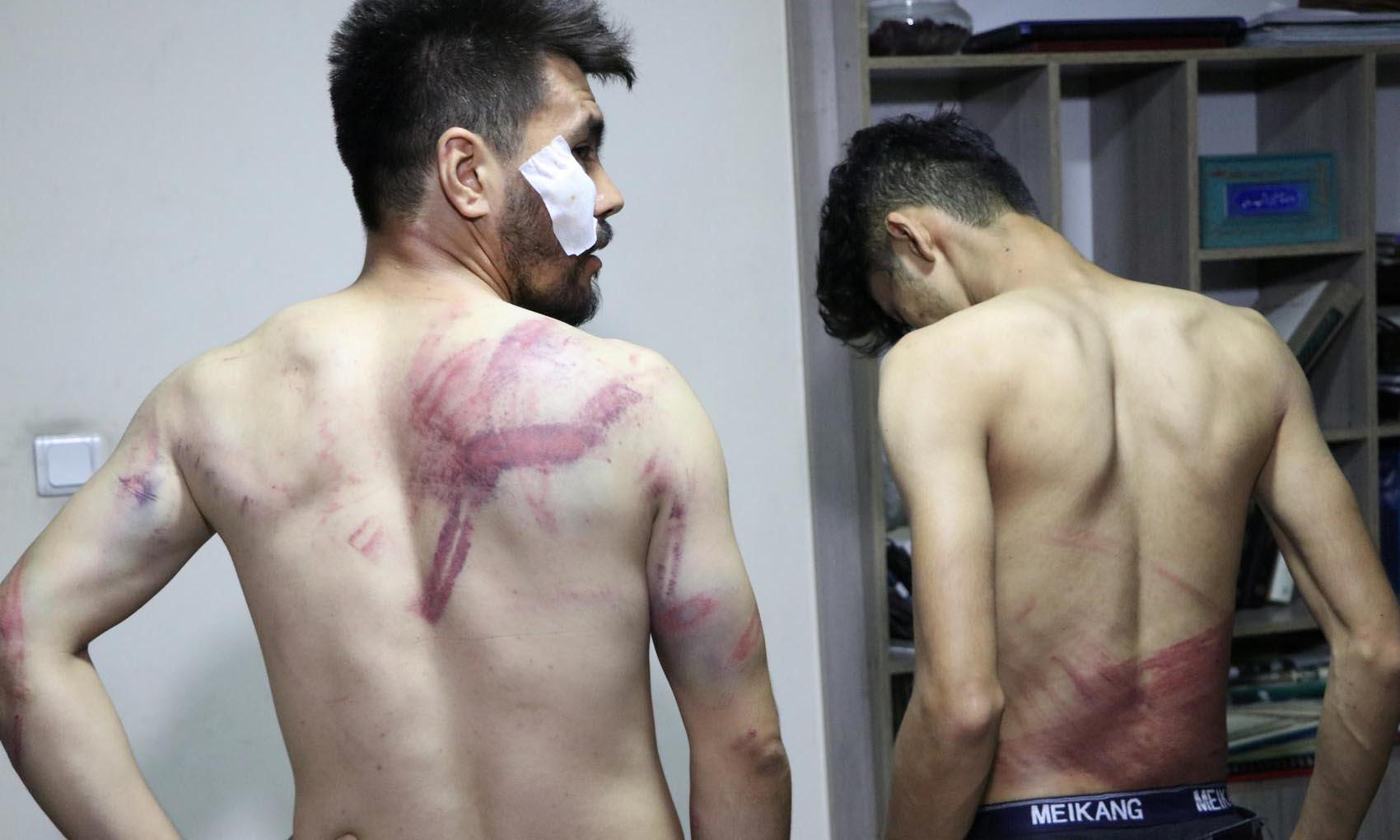 Hai nhà báo bị thương sau khi bị bắt vì đưa tin biểu tình ở Kabul, Afghanistan, hôm 8/9. Ảnh: Etilaat Roz.