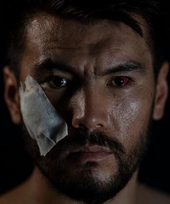 Naqdi chụp ảnh với băng dán vết thương trên mặt tại văn phòng nhật báo EtilaatRoz hôm 10/9. Ảnh: AP.