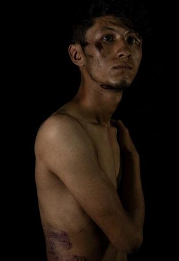 Daryabi chụp ảnh với vết thương trên mặt và cơ thể tại văn phòng Etilaatroz ở Kabul, Afghanistan hôm 10/9. Ảnh: AP.