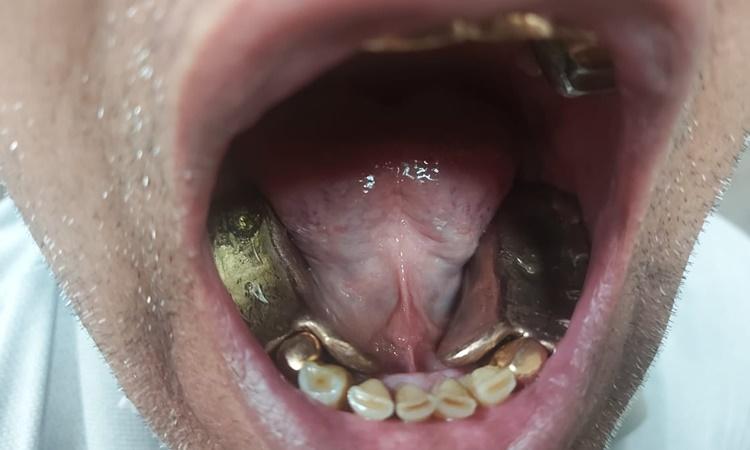 Hàm răng giả bằng vàng của kẻ buôn lậu. Ảnh: Twitter/Delhi Customs.
