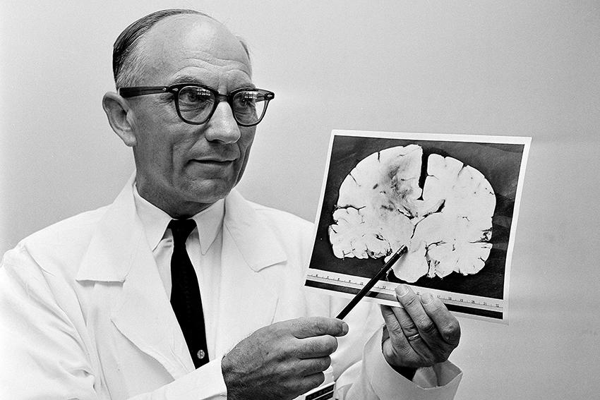 Bác sĩ chỉ ra khối u trong não Kẻ bắn tỉa trên tháp Texas, Charles Whitman, tháng 8/1966. Ảnh: The daily Texan
