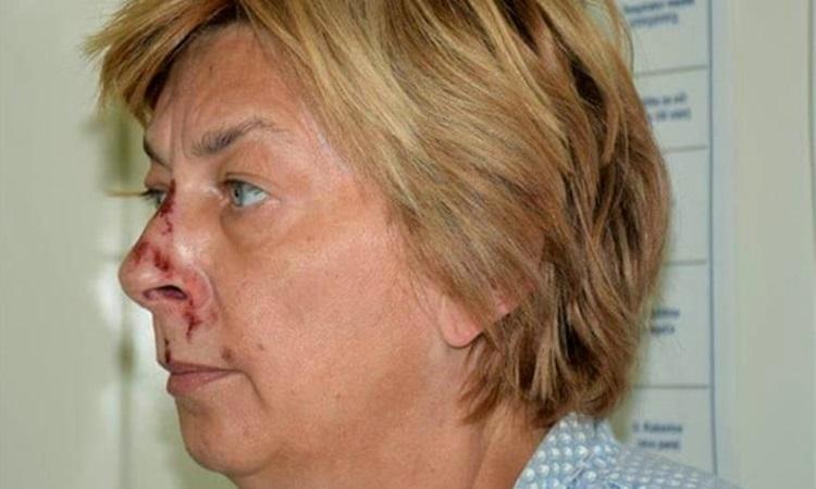 Bà Dana Adamcova sau khi được cảnh sát phát hiện trên mỏm đá ở đảo KrK, Croatia đầu tháng này. Ảnh: AP.