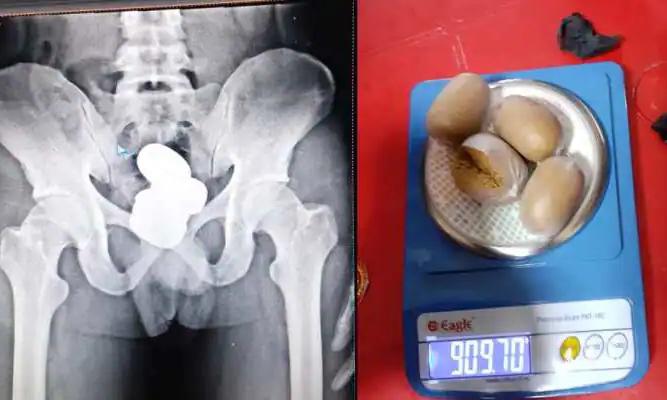Ảnh chụp X-quang (trái)  và bốn viên nang vàng được lấy từ trực tràng của Mohammed Shereef được CISF công bố ngày 29/9. Ảnh: AFP.